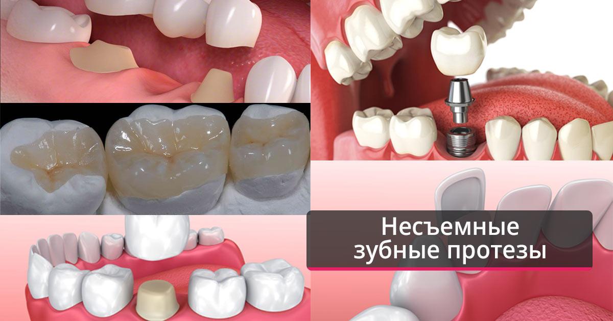 Виды несъёмного протезирования зубов